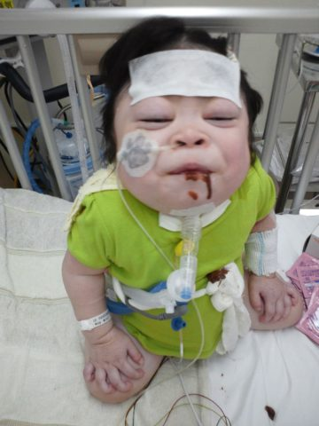 ついに人工呼吸器を導入。入院中の娘が闘病の励みにするきょうだいの存在